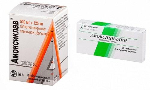 Амоксициллин или Амоксиклав назначается для лечения патологий, вызванных бактериальной инфекцией