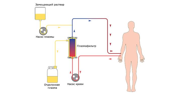 Схема плазмафереза