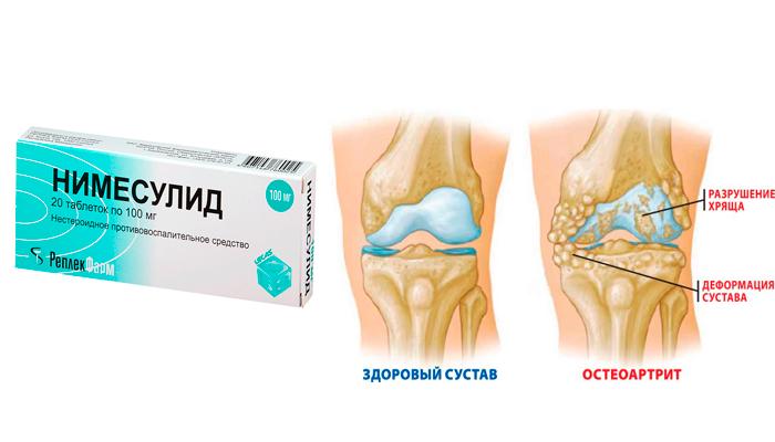 Применение Нумесулида при остеоартритах