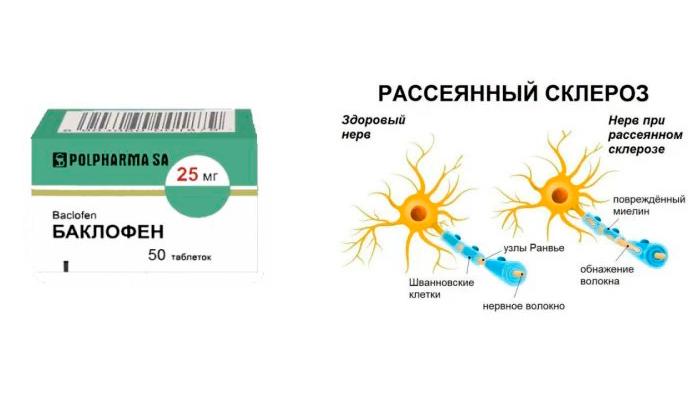Применение препарата Баклофен при рассеянном склерозе
