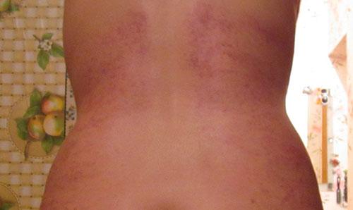 Синяки на спине после не правильного массажа
