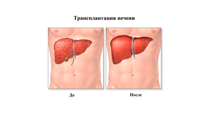Операция по трансплантации печени