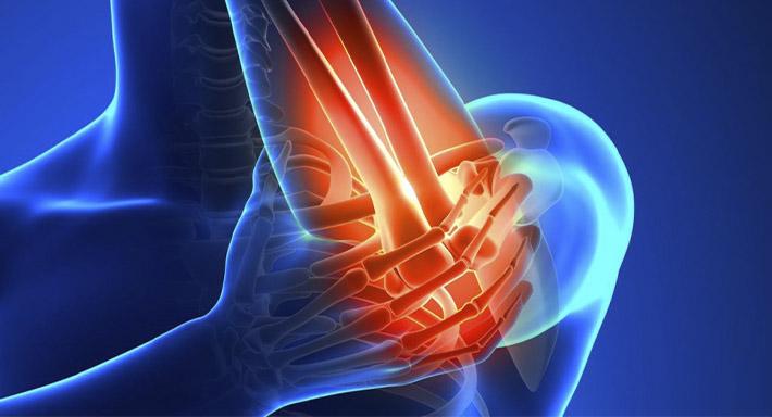 Артроз локтевого сустава симптомы и методы лечения