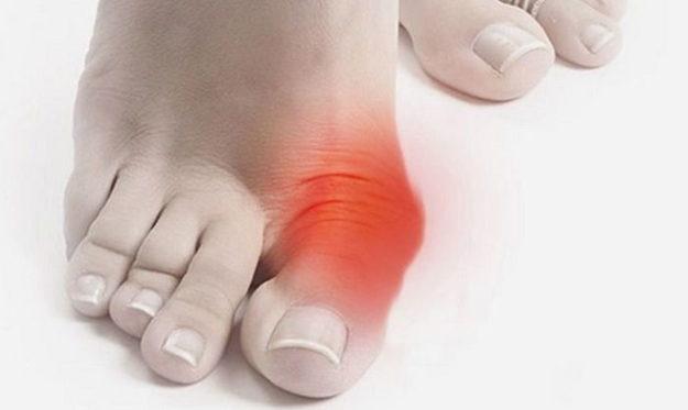 Болит косточка на большом пальце ноги: причины, симптомы, лечение