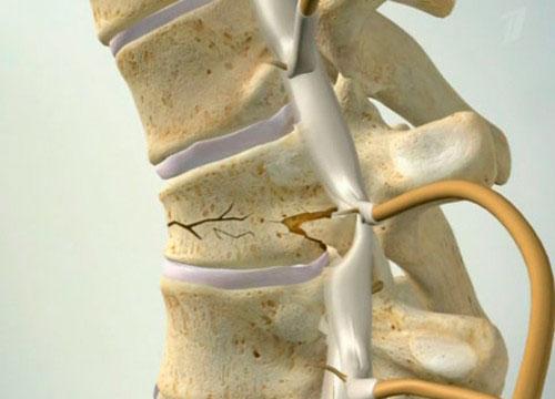 Что такое компрессионный перелом грудного отдела позвоночника