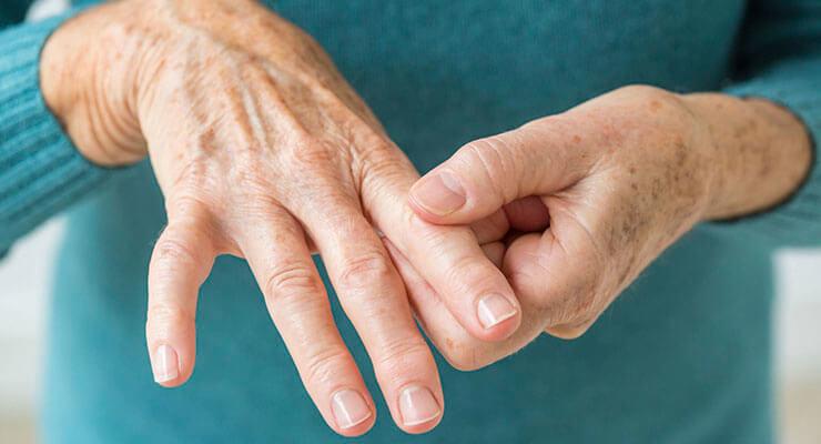 Симптомы артрита, причины и методы лечения