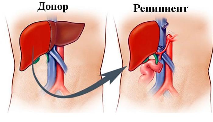 Операция по пересадки печени при мелкоузловом циррозе