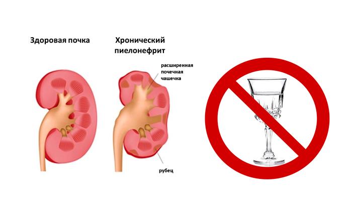 Запрет на прием алкоголя при пиелонефрите