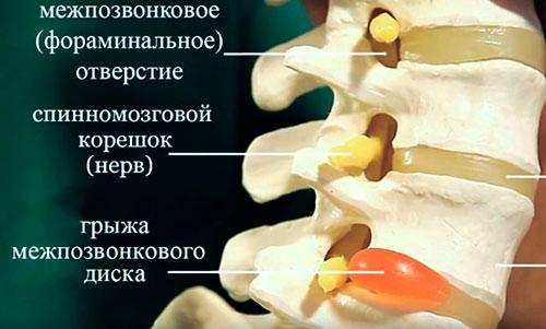 Что такое грыжа шейного отдела позвоночника