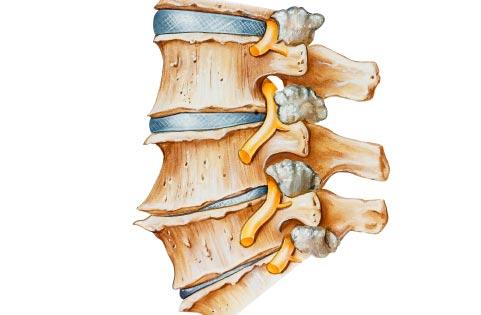 Симптомы и лечение артрита позвоночника