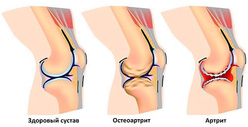 Степени артрита