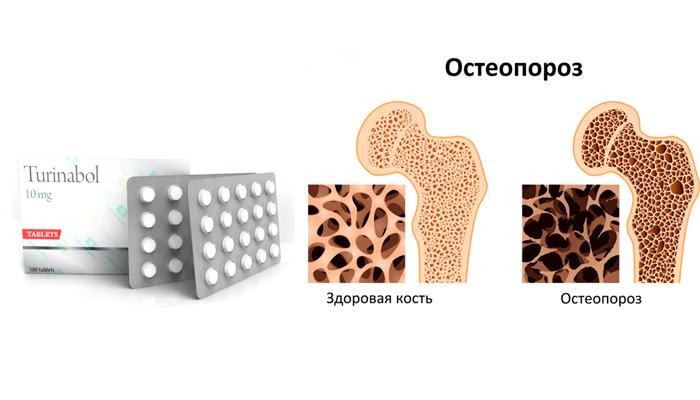 Применение лекарства Туринабол при остеопорозе