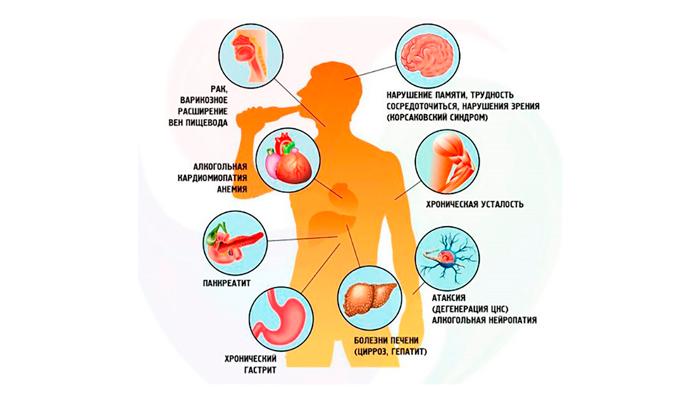Воздействие спиртных напитков на человеческий организм