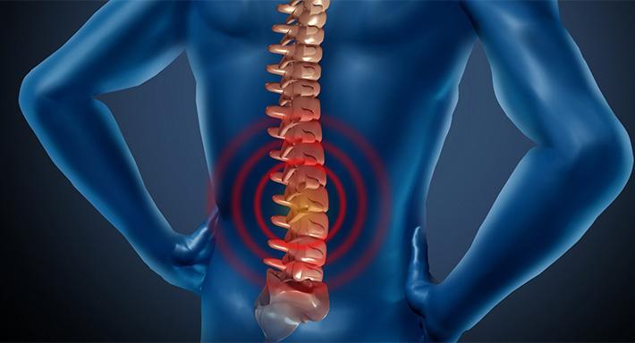Что такое спондилез позвоночника: симптомы, лечение, профилактика