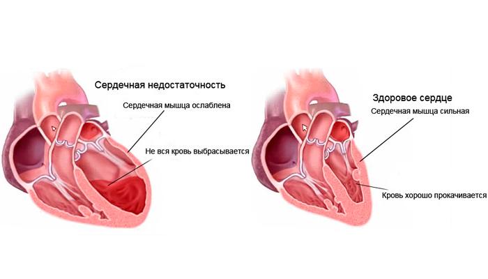 Возможная сердечная недостаточность в результате курения спайсов
