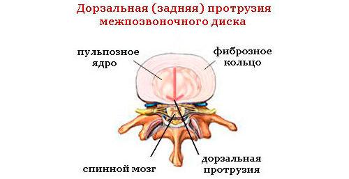 Что такое дорзальная диффузная грыжа межпозвонкового диска и ее причины