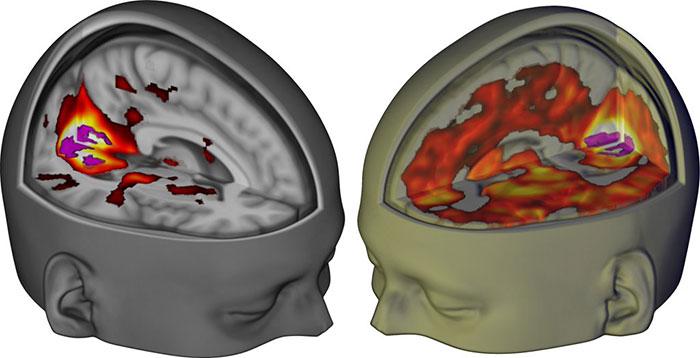 Мозг человека употребившего LSD под МРТ
