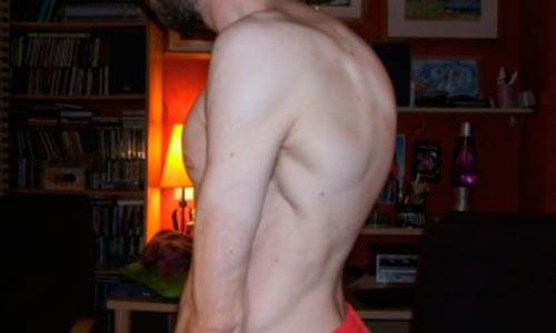 Почему растет горб на спине?