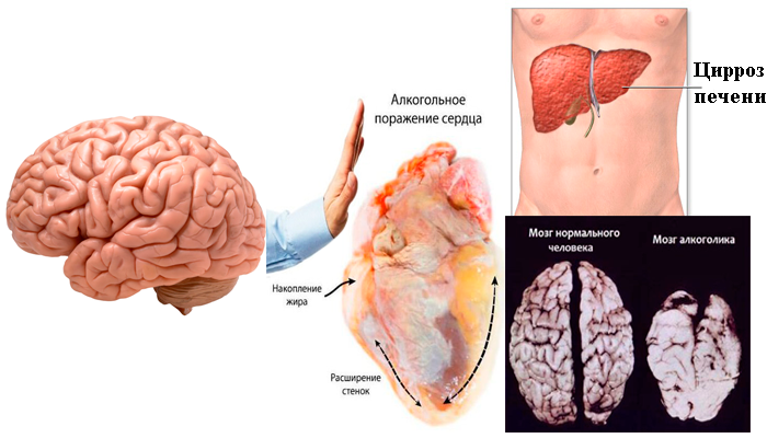 Вытеснение мозгом ненужной информации касательно вреда алкоголя на втором защитном барьере
