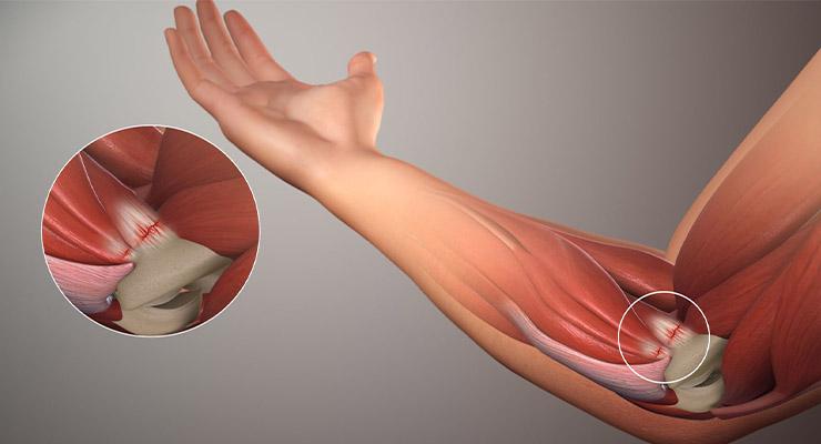 Что такое артроз локтевого сустава?