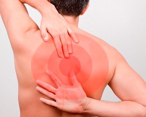 Причины возникновения грудного радикулита