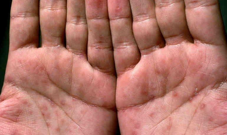 Сифилис все что нужно знать об опасной болезни и ее лечении!