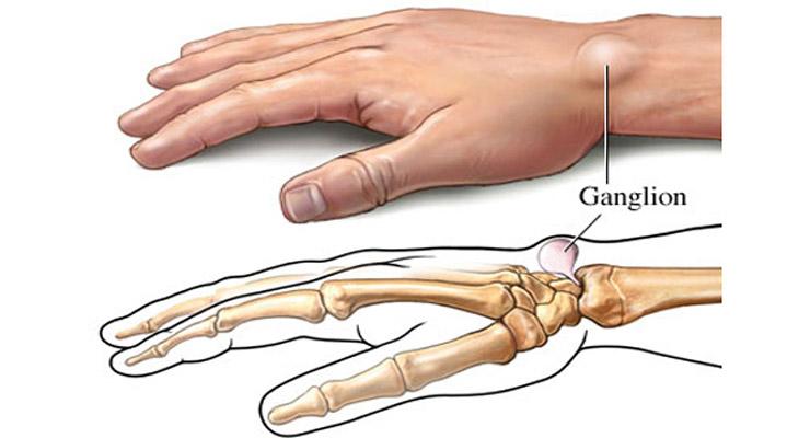 Симптомы гигромы