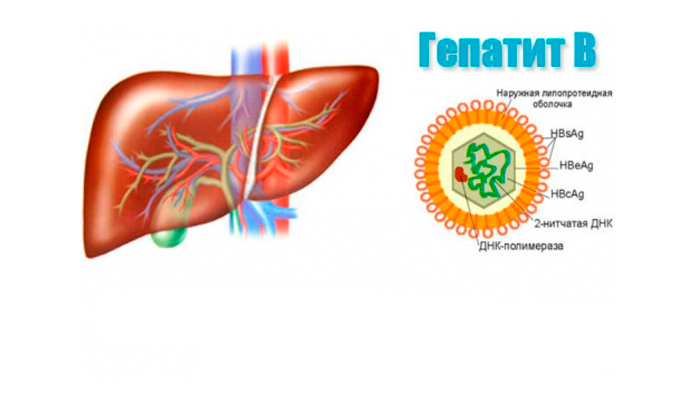 Развитие мелкоузлового цирроза печени из-за гепатита В