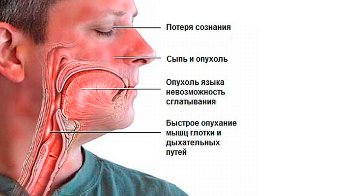 Анафилактический шок, как одно из последствий аллергии