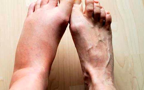 Что такое Бурсит голеностопного сустава и как его лечить?