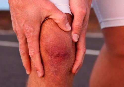 Причины, симптомы, степени и лечение артроза коленного сустава