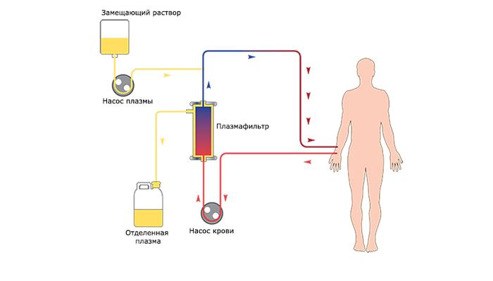 Схема процедуры плазмофереза