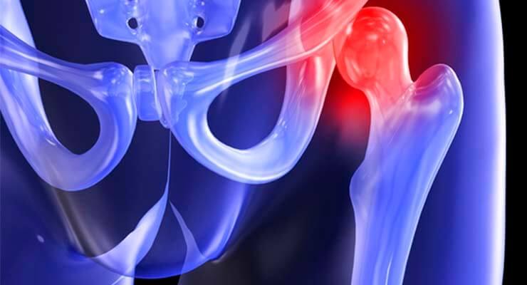 Коксартроз тазобедренного сустава: причины, виды, симптомы, лечение