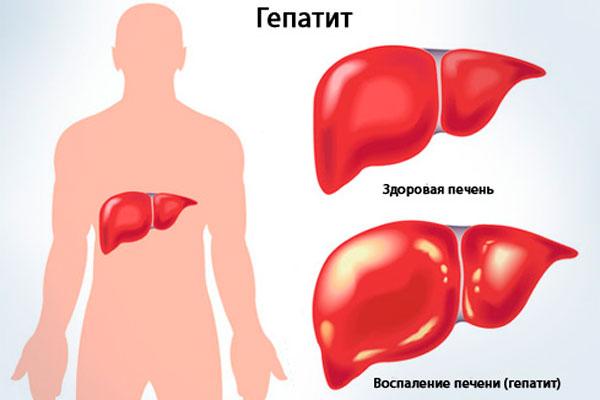 Гепатит, в следствии длительного употребления &quot,Белого Китайца&quot,