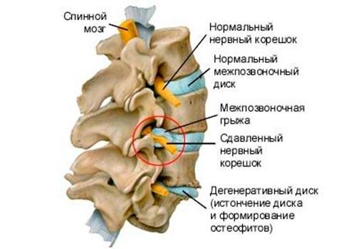 Причины защемления грудного нерва