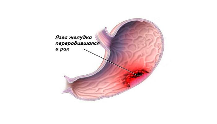 Язва переродившаяся в рак из-за употребления спиртного в период заболевания