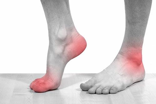 Причины, симптомы и лечение артрита суставов стопы