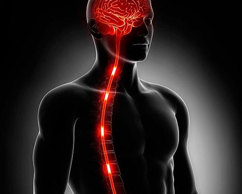 Инсульт спинного мозга (спинальный инсульт)