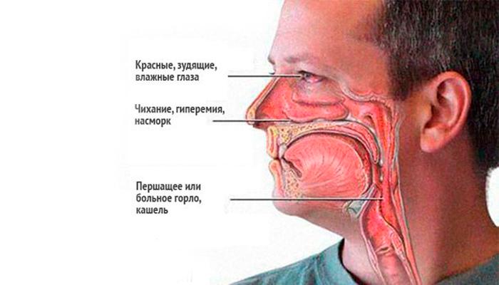 Возможный ангиноневрический отек в следствии смешивания Терафлю и алкоголя
