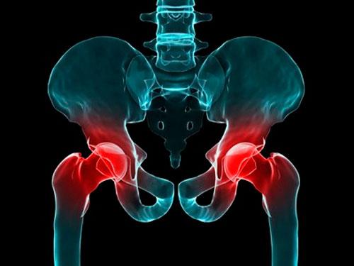 Боль переходящая в тазобедренный сустав