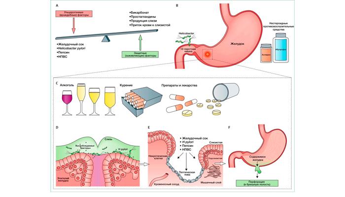 Разрушающие факторы приводящие к язве желудка