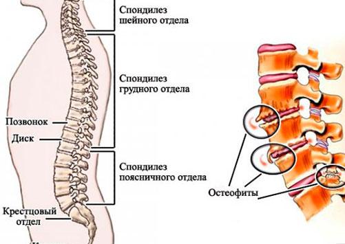 Причины и симптомы деформирующего спондилеза поясничного отдела позвоночника