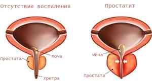 Основные признаки простатита и способы его лечения
