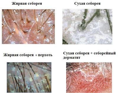 Виды себореи